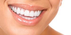 Dentacare Leistungen Bleaching