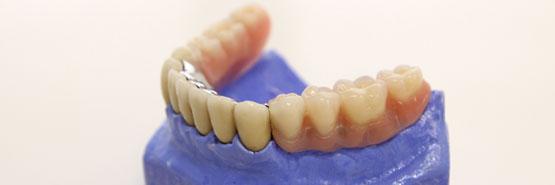 Dentacare Leistungen Prothetik